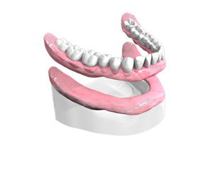 appareil-resine-complet – Dentiste Boulogne Billancourt