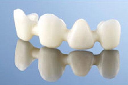 Bridge-dentaire - Dentiste Boulogne Billancourt