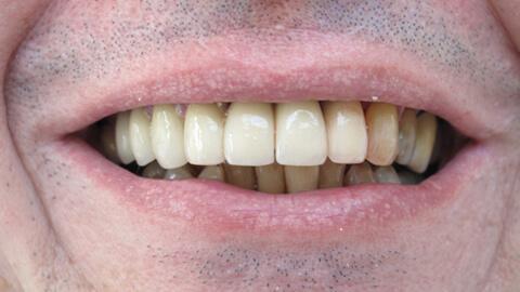 Encombrement anterieur Apres - Cas Clinique – Dentiste Boulogne Billancourt