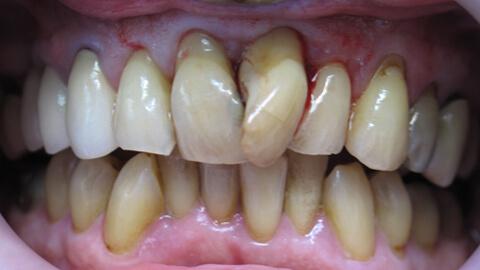Encombrement anterieur Avant - Cas Clinique – Dentiste Boulogne Billancourt