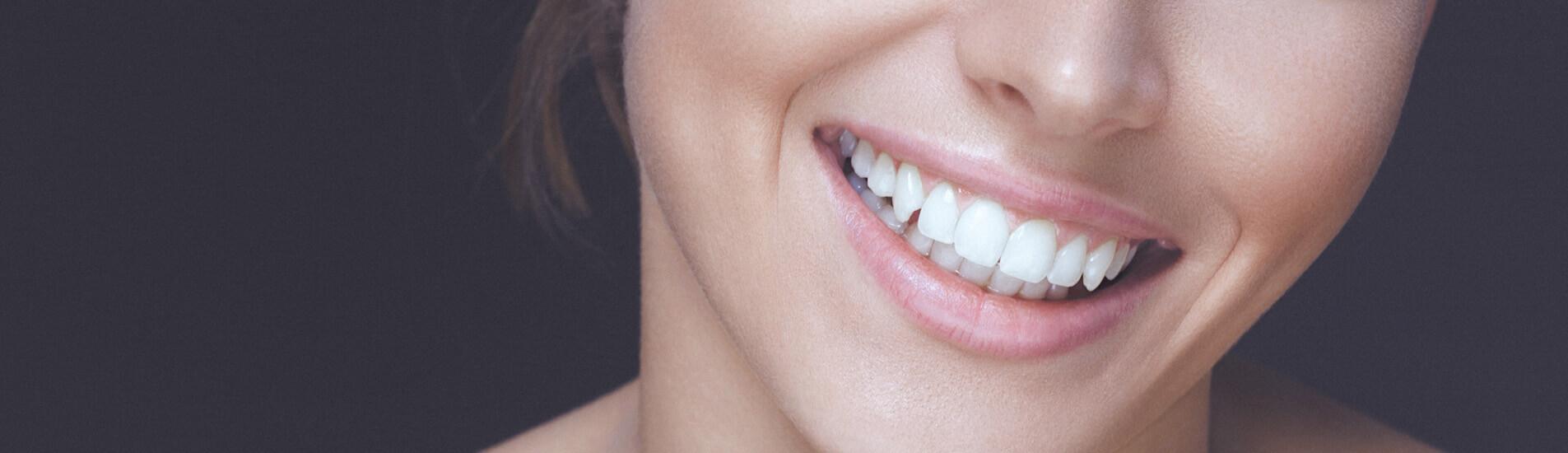 Esthetique dentaire - Dentiste Boulogne Billancourt