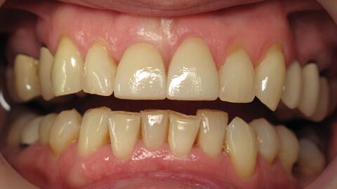 Facettes en ceramique sur 2 incisives centrales Apres - Cas Clinique – Dentiste Boulogne Billancourt