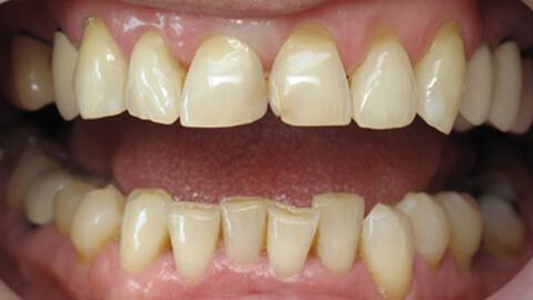 Facettes en ceramique sur 2 incisives centrales Avant - Cas Clinique – Dentiste Boulogne Billancourt