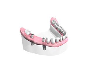 Mise-en-place-des-implants-dentaires – Dentiste Boulogne Billancourt