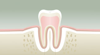 Parodontologie Stade 1 - Dentiste Boulogne Billancourt