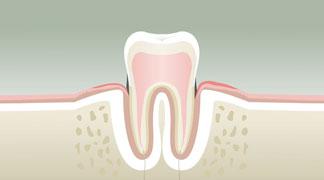 Parodontologie Stade 2 - Dentiste Boulogne Billancourt