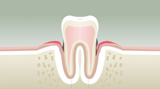 Parodontologie Stade 3 - Dentiste Boulogne Billancourt