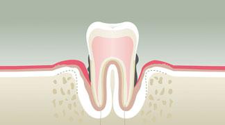 Parodontologie Stade 4 - Dentiste Boulogne Billancourt