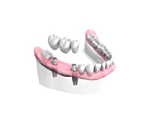 Pose d un bridge ceramique sur implants – Dentiste Boulogne Billancourt