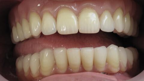Prothese amovible complete Apres - Cas clinique – Dentiste Boulogne Billancourt