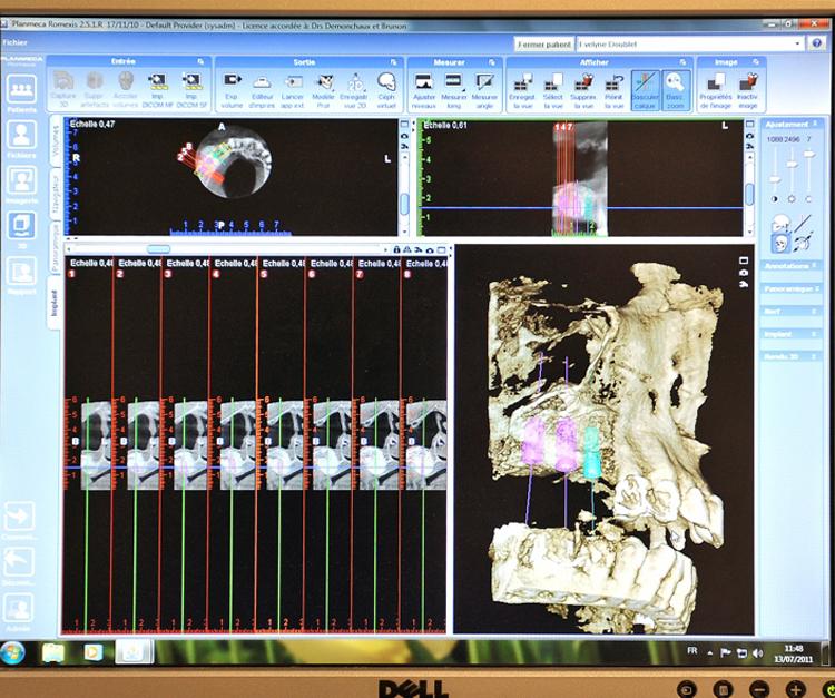 scanner dentaire 3d du cabinet dentaire dentiste boulogne billancourt. Black Bedroom Furniture Sets. Home Design Ideas