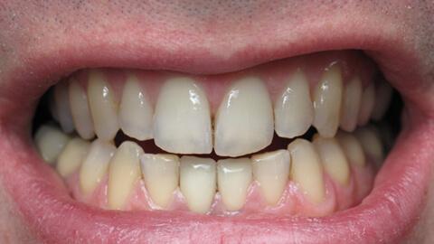 Reconstruction incisives mandibulaires Apres - Cas Clinique – Dentiste Boulogne Billancourt