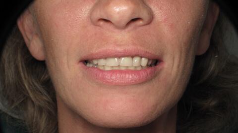 Restaurations temporaires Apres - Cas Clinique – Dentiste Boulogne Billancourt