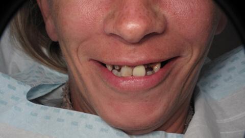 Restaurations temporaires Avant - Cas Clinique – Dentiste Boulogne Billancourt