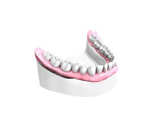 Sourire retrouve – Dentiste Boulogne Billancourt