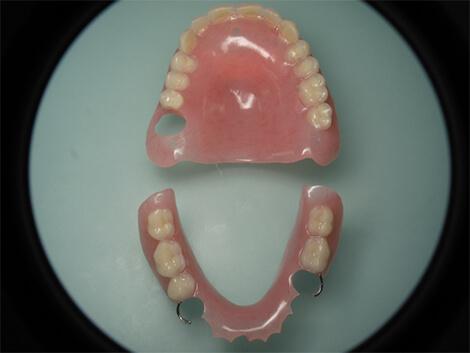 protheses-provisoires-amovibles – Dentiste Boulogne Billancourt